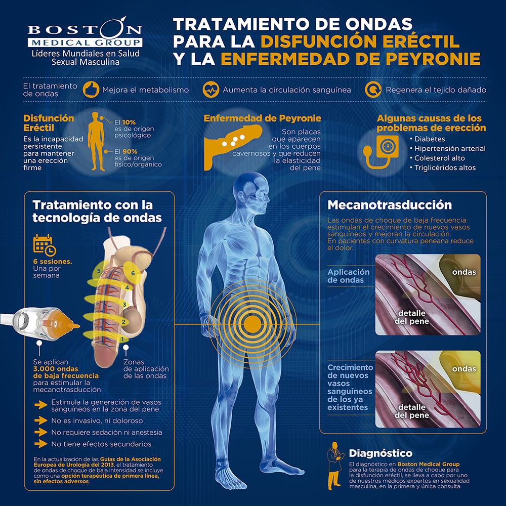 Terapia ondas Boston Medical Group